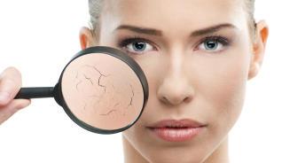 Diez consejos para aliviar la piel seca